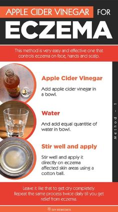 Forces Your Body to Heal Psoriasis - How to use Apple Cider Vinegar for Eczema: ACV is an effective remedy for eczema but it is equally important to know how to use ACV properly. So, here we are providing you with the best ways of ACV to heal eczema. Psoriasis Diet, Psoriasis Remedies, Eczema Home Remedies, Natural Remedies, Plaque Psoriasis, Acne Remedies, Health Remedies, Apple Cider Vinegar Eczema, Home Remedies