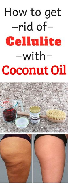 How To Get Rid Of Cellulite With Coconut Oil - hautpflege Coconut Oil Cellulite, Cellulite Scrub, Coconut Oil For Acne, Natural Coconut Oil, Coconut Oil Uses, Organic Coconut Oil, Cellulite Remedies, Natural Skin, Cellulite Workout