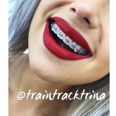 Image may contain: one or more people and closeup Braces Smile, Kids Braces, Dental Braces, Teeth Braces, Braces Transformation, Braces Before And After, Cute Braces Colors, Braces Tips, Grills Teeth