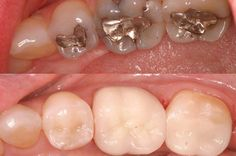Most of the people suffering from the teeth problem and want to find the best treatment center. So we offer the high quality cosmetic teeth colored treatment to the patient at very reasonable rates.  For further inquiry visit our website.