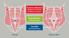 Diastasis Recti - Is surgery the only treatment? AND how to check yourself for diastasis recti. Post Baby Workout, Post Pregnancy Workout, Pregnancy Fitness, Pregnancy Health, Muscle Separation, Mutu System, Healing Diastasis Recti, Mummy Tummy, Gestational Diabetes