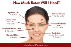 How Much Botox Will I Need? www.utahfacialplastics.com