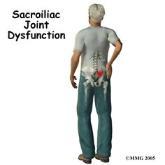 All about Sacroiliac Joint Dysfunction #lowerbackpain