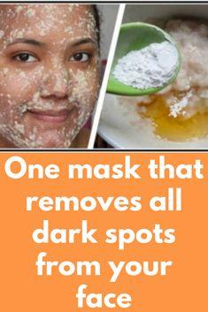 Ways to get Rid Of Brown Spots on Face Sun Spots On Skin, Black Spots On Face, Brown Spots On Hands, Spots On Legs, Dark Spots, Neutrogena, Sunspots On Face, Spots On Forehead, Dark Spot Remover For Face