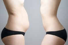 5 Consejos para perder grasa abdominal mas rapido. Apunta http://clubvive100.com/5-consejos-para-perder-grasa-abdominal-mas-rapido-apunta/ Club Vive100