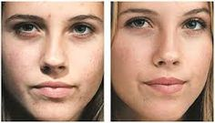 Image result for microdermabrasion pictures