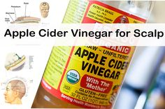 Here is the list of best home remedies for the treatment of Dry scalp using Apple cider vinegar.