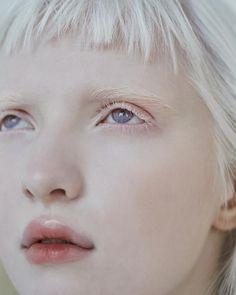 Modelo Albino, Albino Girl, Half Elf, Albino Model, Art Alevel, Female Profile, White Aesthetic, Artemis, Silhouette