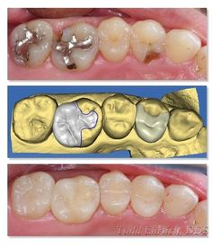 If you are a current Cerec user wanting to hone your skills, or someone curious…