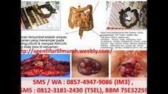 OBAT SUSAH BAB, HUBUNGI 0812-3181-2430. Obat Susah Buang Air Besar - YouTube, SUSAH BUANG AIR BESAR, BERARTI KITA MENUMPUK KOTORAN DALAM TUBUH KITA. Susah buang air besar yang menimpa banyak orang ternyata berbahaya.Menimbun kotoran dalam tubuh sama dengan menimbun racun.FIFORLIF adalah Extract Minuman segar kaya serat berNUTRISI tinggi yang membersihkan saluran pencernaan. HUBUNGI : HP: 0812.3181.2430 (TSel)  0857.4947.9086 (IM3) PIN BB : 75E32259 http://agenfiforlifmurah.weebly.com/