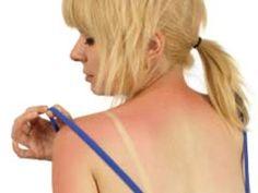 Sunburn Treatment at Home: Treat sunburn skin with home remedies. How to treat the sunburn skin? Sunburn treatment in ayurveda. Sunburn treatment face home. Home Remedies For Burns, Natural Remedies For Sunburn, Sunburn Remedies, Natural Cures, Herbal Remedies, Health Remedies, Natural Health, Natural Skin, Aloe Vera