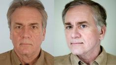 Doctor Oz On Firmativ Anti-Aging Treament