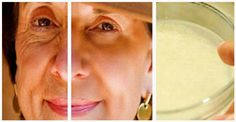 Homemade cream recipe to rejuvenate facial skin and get rid of wrinkles! Skin wrinkles typically appear as a result of the normal . Homemade Cream Recipe, Creme Anti Rides, Wrinkle Remedies, Wrinkled Skin, Prevent Wrinkles, Wrinkle Remover, Homemade Skin Care, Tips Belleza, Anti Aging Cream