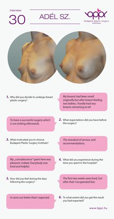Adél had breast augmentation. The after surgery photo was taken 2 weeks after breast surgery. 275 cc, Mentor CI, round medium high profile textured implants were used. http://bppi.hu/surgery-breast-augmentation
