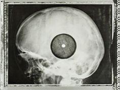Des vinyles gravés sur des radios médicales, le piratage à la russe des années 50