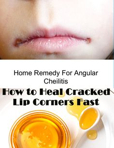 Dry Skin Remedies, Home Remedies, Natural Remedies, Cracked Corners Of Mouth, Chapped Lips Remedy, Dry Lips Remedy, Cracked Lips, Cold Sore, Healthy Lifestyle Tips