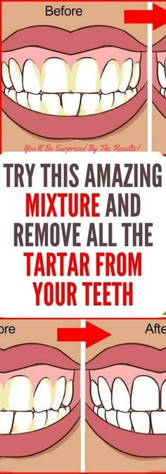 FacebookTwitterGoogle+PinterestCONTROLLING TARTAR IS AN IMPORTANT PART OF KEEPING YOUR TEETH AND GUMS HEALTHY. CHECK THIS SIMPLE RECIPE TO GET RID OF RID OF TARTAR NATURALLY. Oral health is very important since it actually determines your overall health. One of the most important parts of the procedure for oral hygiene is mouthwash. It reduces the presence...  Read more »