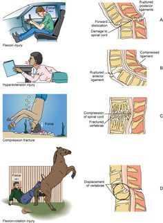Mechanisms of spinal cord injury