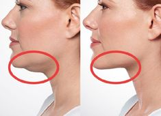 Exercises and Other Ways to Get Rid of Double Chin!