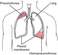 """Résultat de recherche d'images pour """"closed pneumothorax vs tension pneumothorax"""""""