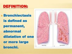 33 Best Bronchiectasis Images On Pinterest Natural Home border=