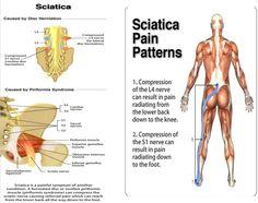 Sciatica pain pic pranic healing