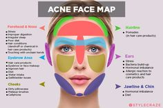 Acne Face Map: What Is Your Acne Trying To Tell You? Akne Face Map: Was versuch. Karina Schott uncategorized Acne Face Map: What Is Your Acne Trying To Tell You? Akne Face Map: Was versucht Ihre Akne Ihnen zu sagen? This image ha Beauty Care, Beauty Skin, Diy Beauty, Beauty Ideas, Beauty Secrets, Skin Secrets, Beauty Guide, Beauty Hacks Acne, Beauty Tips For Skin