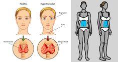 La tiroide aiuta, fra le altre cose, anche a regolare il metabolismo: quando la ghiandola tiroidea non funziona correttamente, il nostro peso aumenta.