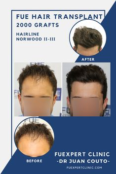 Before After 2000 FUE Grafts - FUE Hair Transplant - Dr Couto - FUExpert  Clinic -