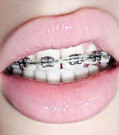 When it comes to the dental pink brace then it is used in the orthodontics which is used to straighten the teeth and improving the dental health. It is also known as Orthodontic cases Cases Braces … Pink Braces, Fake Braces, Bottom Teeth Braces, Silver Braces, Cute Braces Colors, Girls Heart, Brace Face, Dental Braces, Dental Care