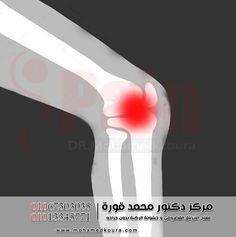 ماهي خشونة الركبه يعد مرض خشونة الركبة من الأمراض الشائعة بين العديد من الأشخاص حيث لم يعد ذلك المرض يقتصر فقط على كبار السن Outdoor Outdoor Decor Wind Sock