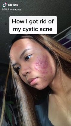 Oily Skin Care, Face Skin Care, Healthy Skin Care, Skin Care Routine Steps, Skin Care Tips, Combination Skin Care Routine, Haut Routine, Clear Skin Tips, Acne Skin