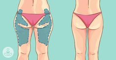 Het warme weer komt eraan en dat betekent blote benen. Sommige mensen beginnen deze dagen als een gek te fitnessen om in de zomer met hun gespierde benen te kunnen pronken. Maar als je nogal een dr…