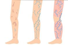 Natural Remedies For Varicose Veins A Simple Naturall Recipe to Say Goodbye to Varicose Veins!Veins are typically identified as being varicose when they are enlarged and appear as bluish or - Varicose Vein Remedy, Varicose Veins, Tighter Skin, Cellulite Remedies, Love Natural, Hypothyroidism, Natural Home Remedies, Natural Treatments, Health And Beauty