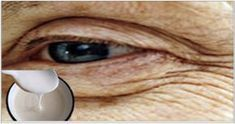 Your Wrinkles Of The Mouth And Eyes Will Fly Like Pigeons With Just Putting This Recipe - Organic Family Beauty Secrets, Diy Beauty, Beauty Hacks, Beauty Products, Face Care, Body Care, Skin Care, Eye Wrinkle, Tips Belleza