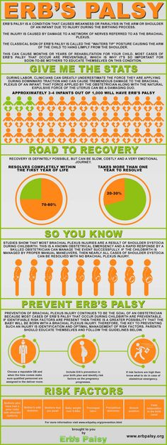"""Erb's Palsy Awareness : What do you know about Erb's Palsy? It's an injury that affects infants during the birthing process and causes weakness or paralysis in the arm or shoulder. In an effort to rise awareness about Erb's palsy, Arthur Sloane of """"erbpalsy.org"""" compiled this report to... > http://infographicsmania.com/erbs-palsy-awareness/?utm_source=Pinterest&utm_medium=ZAKKAS&utm_campaign=SNAP"""