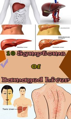 Symptoms of Damaged Liver...Read all Symptoms and React on Time  ( Healthy Top Story Team )