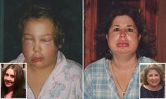 Rare hereditary disease which takes around 13 years to diagnosis
