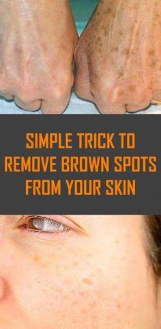 Ways to Clear away Dim Spots From Face Inside of 2 Days #BrownSpotsBetweenTeeth #BrownSpotsRemoval #BrownAgeSpotsOnLegs #BrownSpotsOnSkin