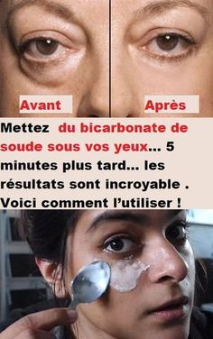 Outstanding beauty care info are available on our website. look at th s and you wont be sorry you did. Beauty Tips For Face, Beauty Secrets, Beauty Care, Diy Beauty, Beauty Hacks Every Girl Should Know, Face Care, Skin Care, Brown Spots On Face, Get Rid Of Blackheads