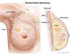 Cirurgia para câncer de mama. A escolha entre mastectomia total e parcial.