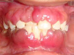 Dentaltown - Drug induced gingival hyperplasia, a drug-induced gingival overgrowth, is a side effect associated primarily with 3 types of drugs: phenytoin which is an anticonvulsant seizure medication, cyclosporine A which is an immunosuppressant drug often used to prevent transplant rejection, and various calcium channel blockers high blood pressure medications like nifedipine, verapamil, diltiazem. The gingival hyperplasia is usually reversible when the therapy is stopped or modified. If a…
