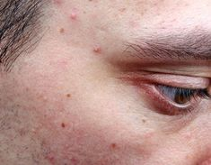 A Brief Description Of The Different Types Of Acne