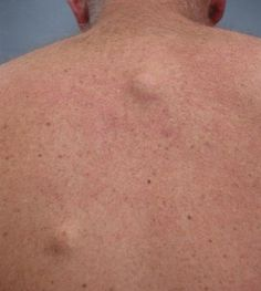 Exactly what Is A Sebaceous Cyst? A Description of What a Sebaceous Cyst Is