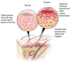Foods Causing Eczema