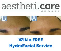 AesthetiCare MedSpa Hydra Facial Review & GIVEAWAY | Macaroni Kid Enter by August 5, 2015 for a chance to win #skincare #medspa #contest #sponsor