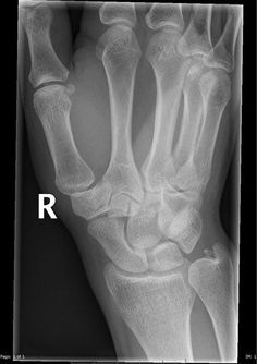 Os triangulare is an uncommon but important differential for an ulna styloid fracture | Radiology Case | Radiopaedia.org