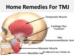 Can tmj cause tinnitus ? Why does tmj cause tinnitus ? Can tmj cause tinnitus in one ear ? How to treat tinnitus caused by tmj ? Jaw Exercises, Jaw Clenching, Facial Nerve, Jaw Pain, Cartilage, Body Joints, Female Hormones, Tension Headache, Muscle Spasms