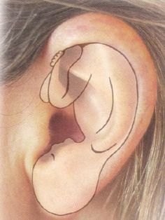 """Traditional """"Western"""" medicine looks to the human ear as only an organ of hearing. Your outer ear however, has complicated nerve connections through which constant communication takes place between your ear, brain and the body. When there is a problem somewhere in your body, we can electrically detect ear acupuncture points corresponding to the organs or tissue involved. By treating these points by various means (discussed later), we energetically trigger or """"jump start"""" a natural healing…"""
