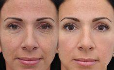 Rejuvenecimiento de 15 años garantizado sin botox Tips Belleza, Pedi, Beauty Care, Facial, Ideas, Health Remedies, Health Tips, Facial Treatment, Facial Care